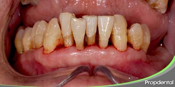 Artritis reumatoide y periodontitis
