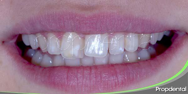 ¿Cuáles son las causas de la malposición dental?