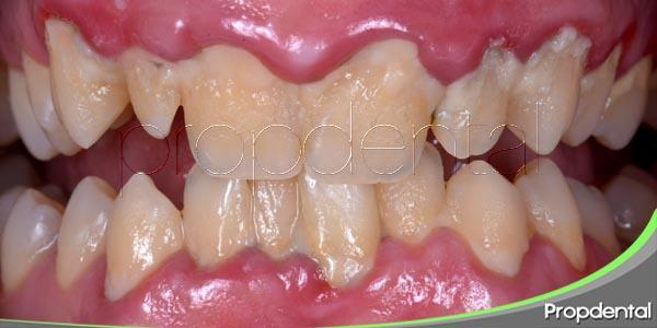 Detectando la gingivitis