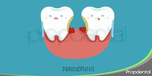 El tratamiento conservador de la enfermedad periodontal