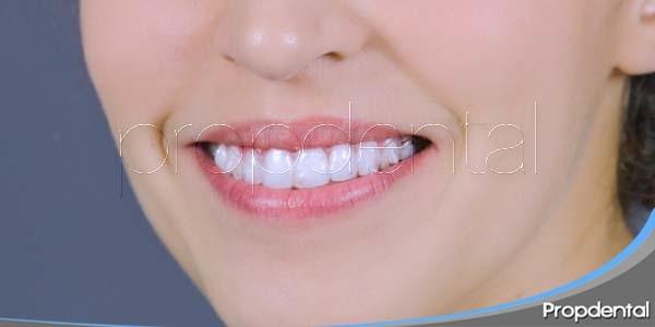 Estética gracias al tratamiendo de Ortodoncia