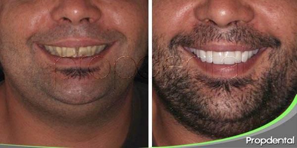 Grandes reconstrucciones dentales