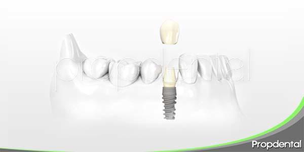 Implantes dentales: Sistema NobelActive