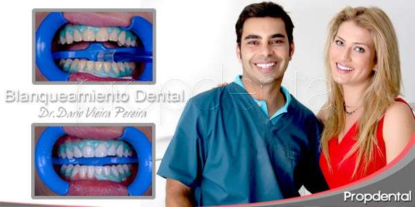 La estética dental
