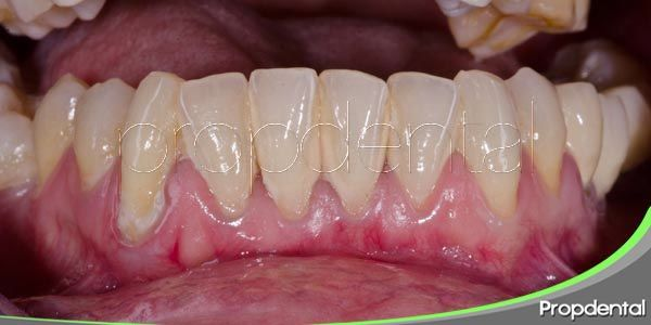La movilidad dentaria y la periodontitis