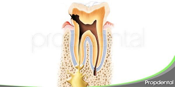 Las características de la periodontitis apical