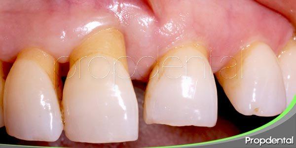 Las consecuencias de sufrir enfermedad periodontal