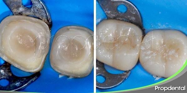 Las inlays: Método de restauración dental estético