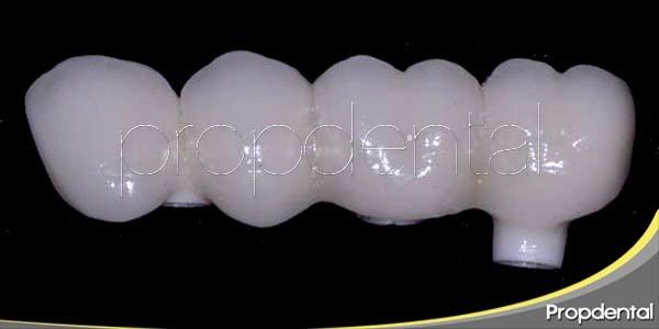 Las ventajas del zirconio en odontología