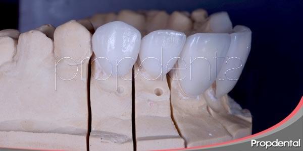 Los dientes de porcelana