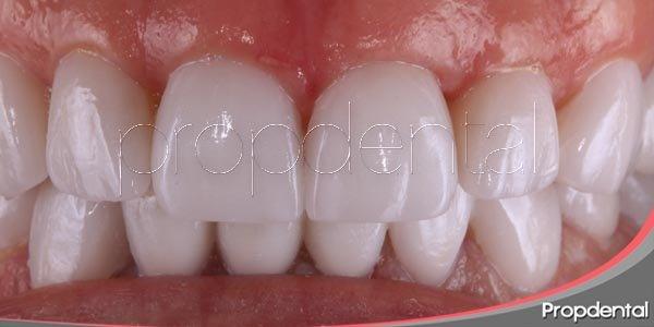 Los inconvenientes de las carillas dentales