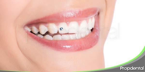 Los riesgos de las joyas dentales
