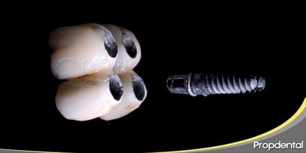 Motivos del fracaso temprano del implante