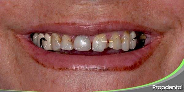 Nuestra dentición envejece junto con nosotros