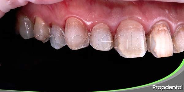 Preparación dentaria para las carillas cerámicas