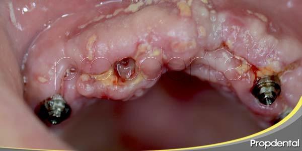 ¿Puede un implante dental ser rechazado?