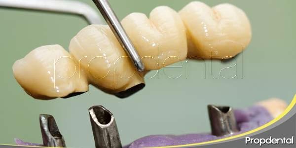 Puentes dentales: Diferentes tipos