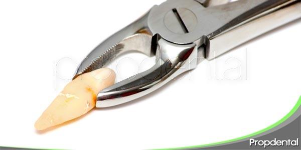 ¿Qué no debemos hacer tras una extracción dental?