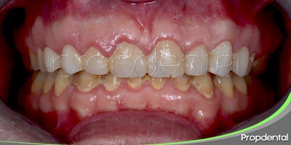 ¿Qué pasa si no te lavas los dientes en un año?