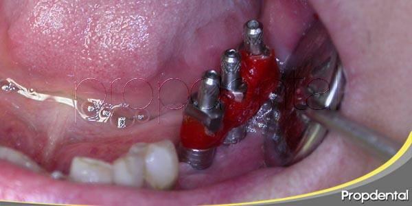 Recuperarte tras la inserción de implantes dentales