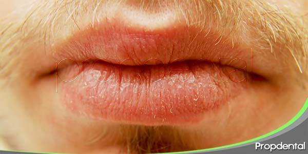 Síndrome de la Boca Seca: ¿Se puede curar?