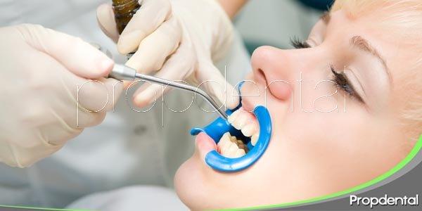 Situaciones idóneas para selladores dentales