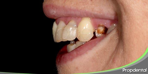 Tabaco y enfermedades periodontales