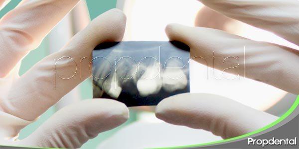 Técnicas radiográficas en el diagnóstico periodontal