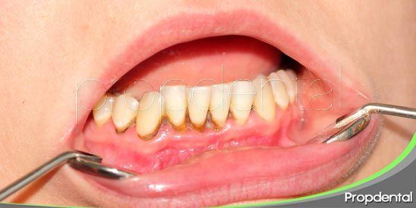Trastornos gingivales frecuentes en los niños