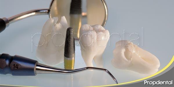 Tres razones para optar por el implante