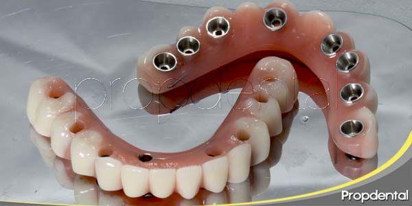 Ventajas del implante sobre la prótesis removible