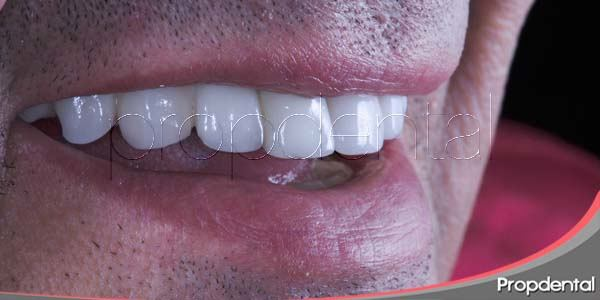 5 razones para someternos a un implante dental