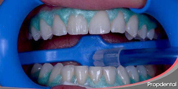 Blanqueamiento dental, un tratamiento seguro y eficaz