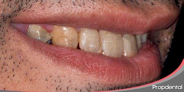 Como evitar manchas dentales