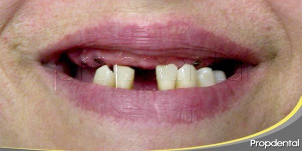 Consecuencias de la pérdida del diente a nivel funcional