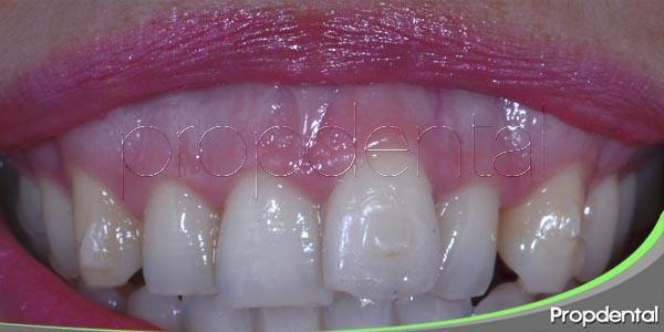 ¿Cuál es la causa de la aparición de la sonrisa gingival?