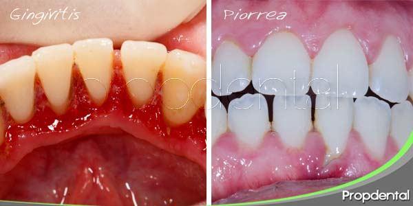 Diferencias entre gingivitis y piorrea