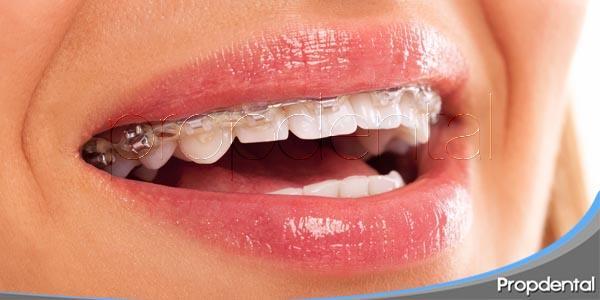 El tratamiento de Ortodoncia en pacientes adultos