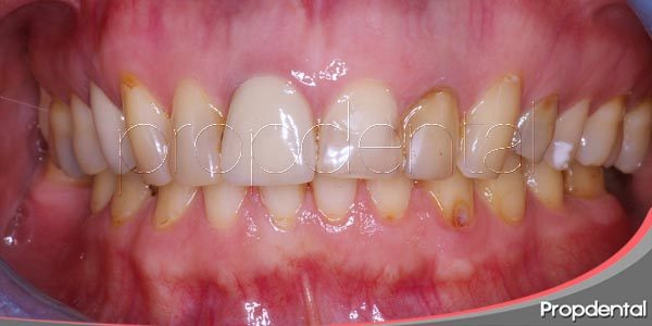 Estética dental: Las variedades de manchas dentales