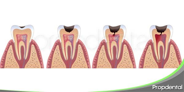 Fases de la caries dental