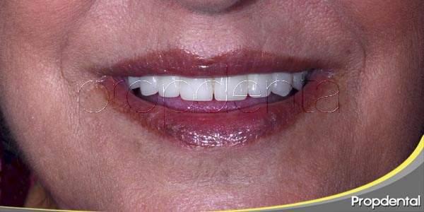Implantes dentales: dientes para toda la vida