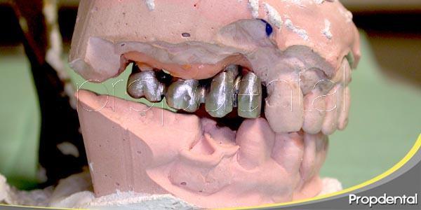 Implantología dental: Factores de riesgo