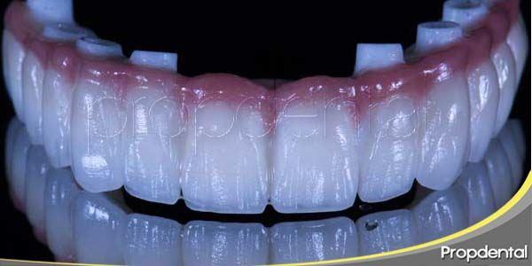 Información acerca de las prótesis dentales