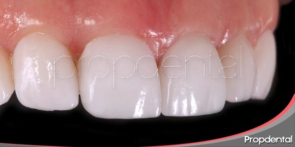 La historia de la odontología estética