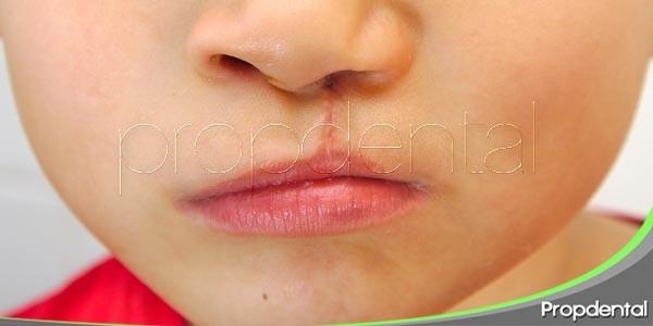 Labio leporino y paladar hendido: los síntomas