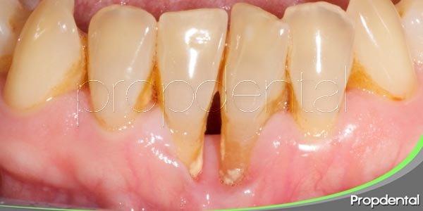 Las principales enfermedades periodontales