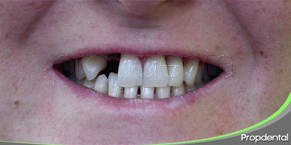 Los motivos por los que se produce la pérdida dental