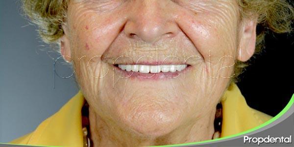 Los pacientes mayores: Un colectivo muy especial
