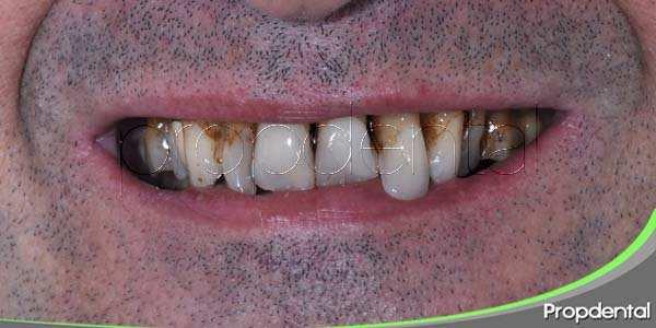 Los riesgos de no acudir al dentista