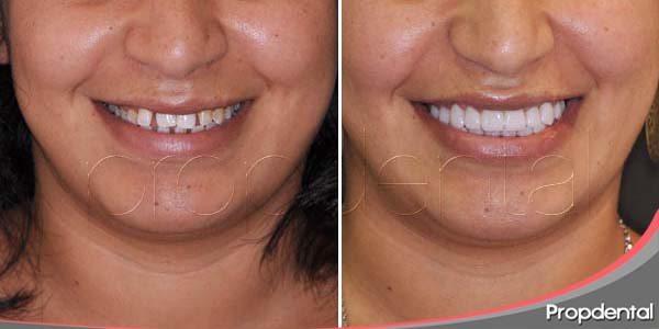 Mejorar la estética dental mediante carillas